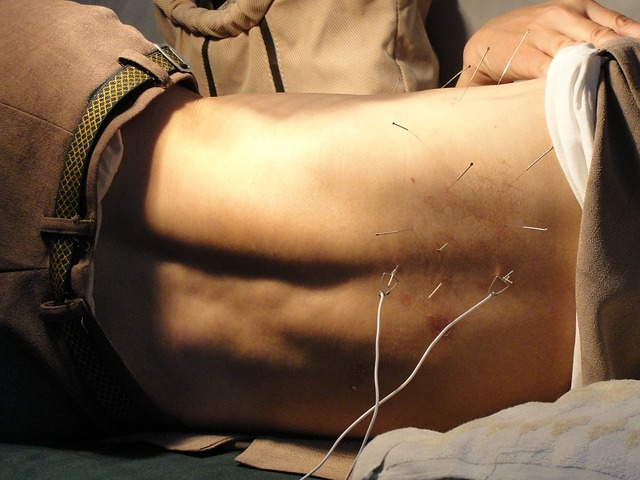 acupuncture 3275458_640 1
